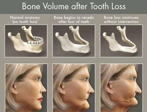 Bone loss happens after tooth loss.