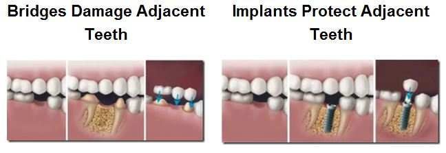 Bridge v. Dental Implant