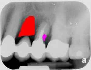 Tooth Implant Pasdena Texas