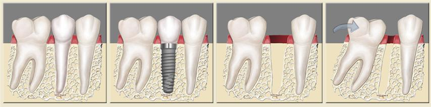 Dental Implants preserve bone levels and keep teeth from shifting.