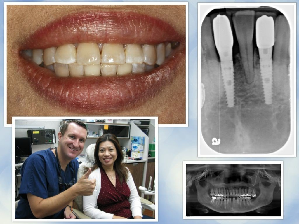 Pasadena Texas Dental Implants