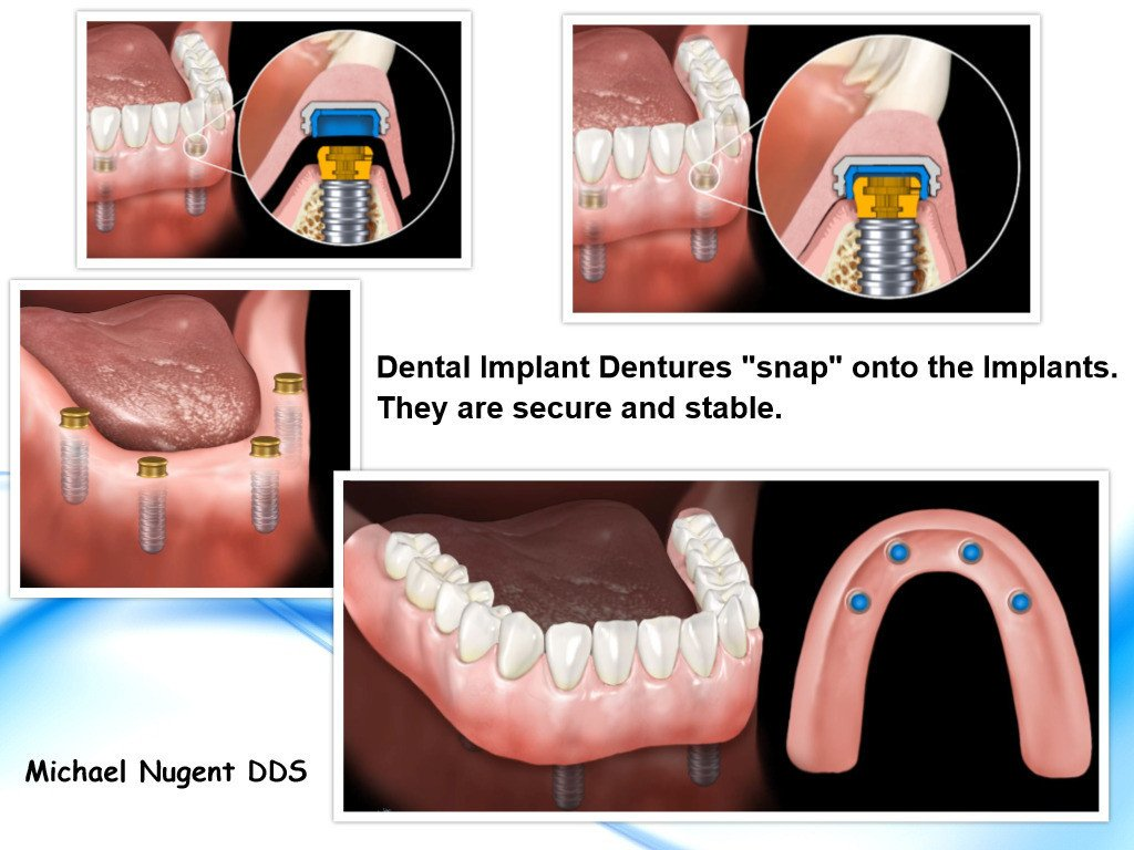 Dental Implant Dentures Pasadena, Deer Park Texas