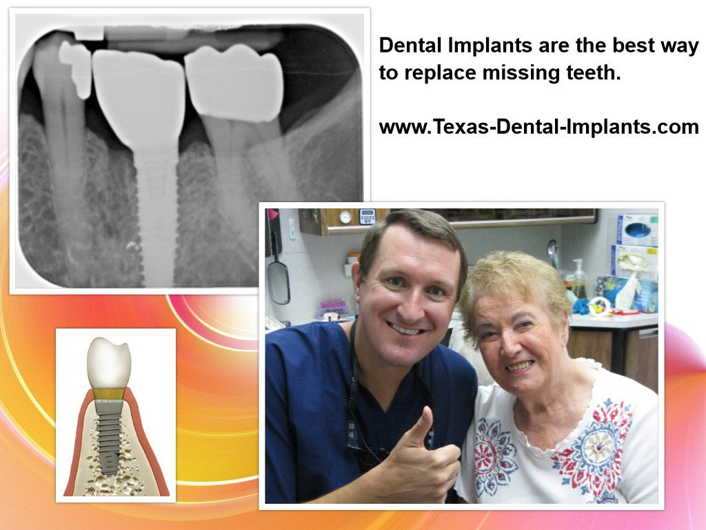 Deer Park Texas Dental Implant Dentist