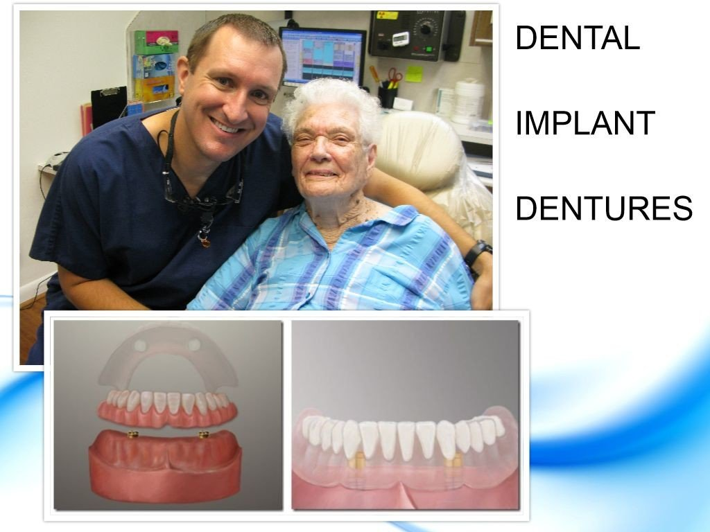 Dental Implant Denture