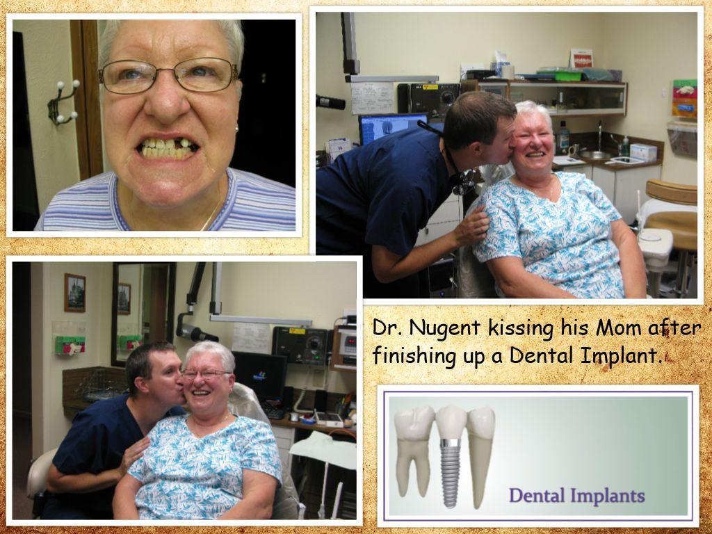 Dental Implants for Pasadena Deer Park TX