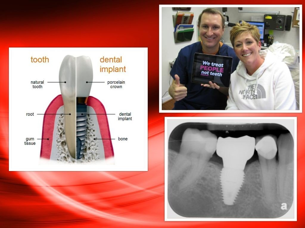 Best Dental Implants Pasadena, Deer Park TX