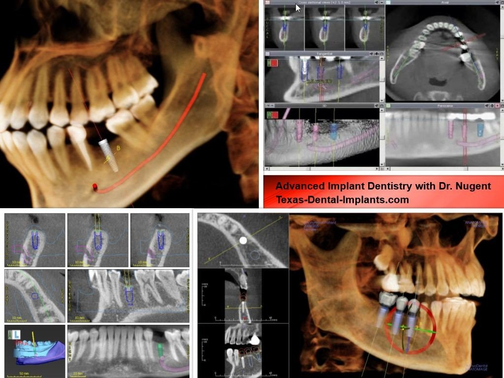 Advanced Dental Implants in Texas