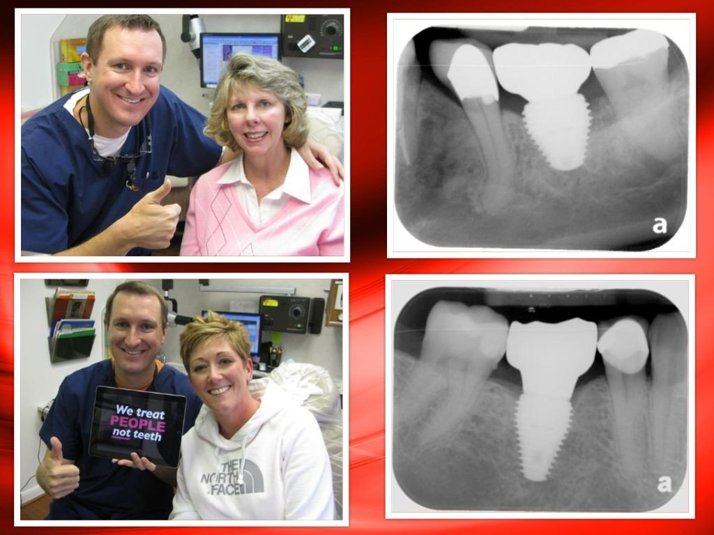 Deer Park, Pasadena Texas Dental Implant Dentist