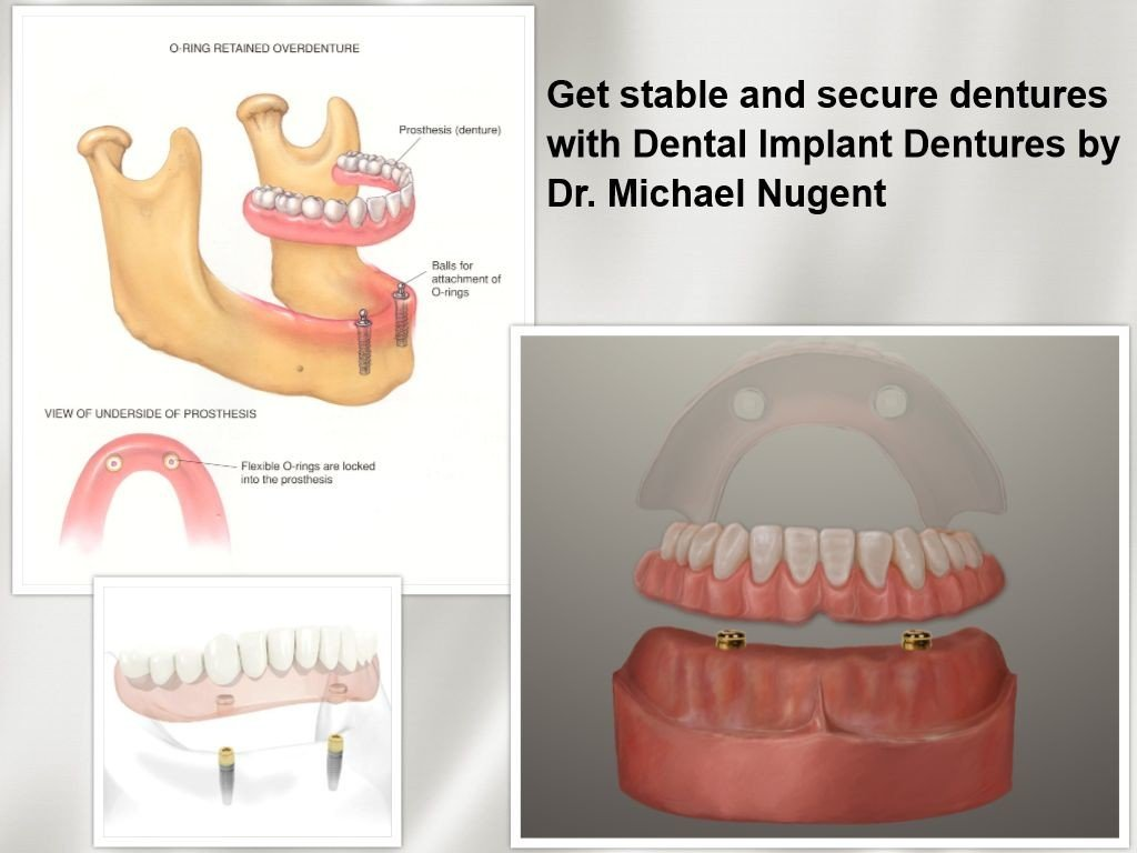 Dental Implant Dentures Paadena Texas