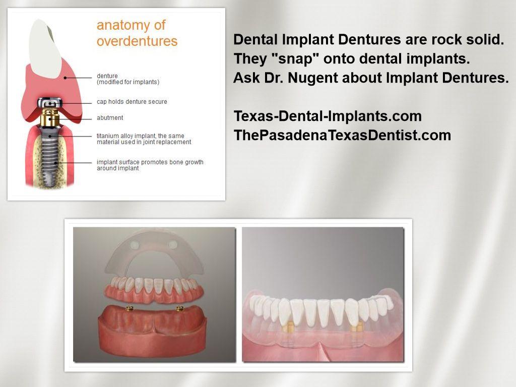 Denture Problems 77504 | I hate my Dentures | Pasadena TX Dentist