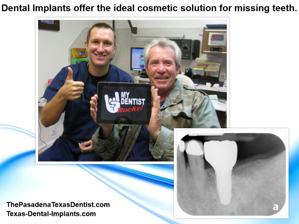 Tooth Implant Pasadena Texas