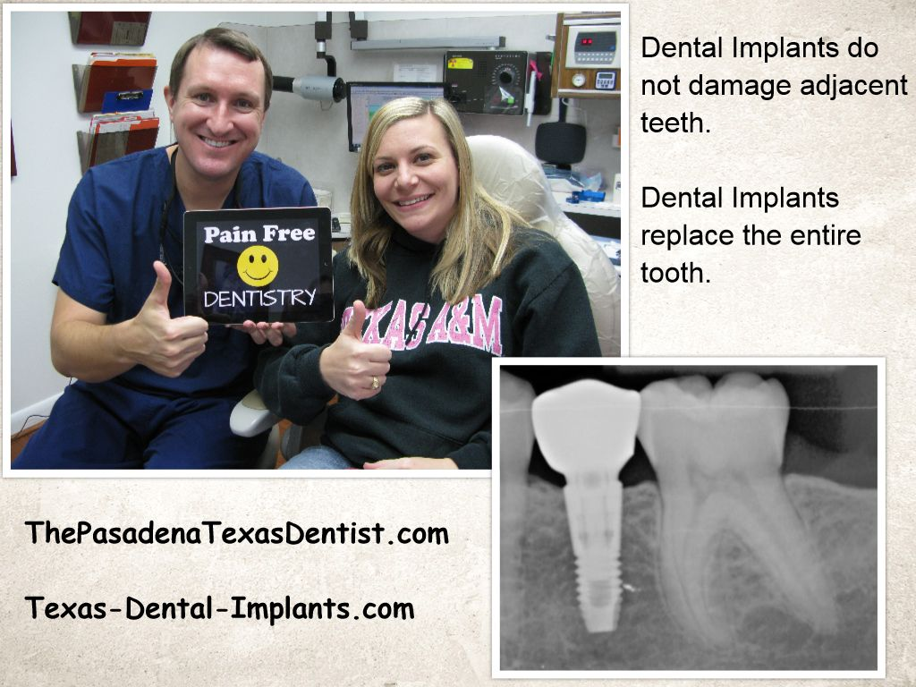 Dental Implant Dentistry Pasadena, Texas