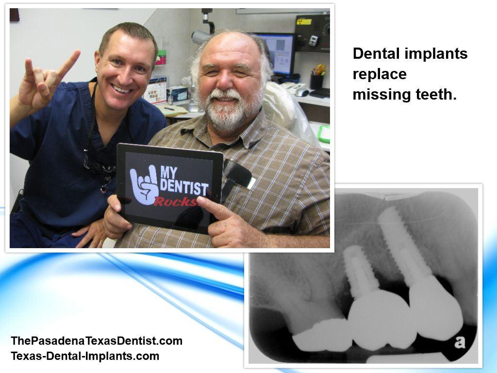 Implant Dentist Deer Park Texas