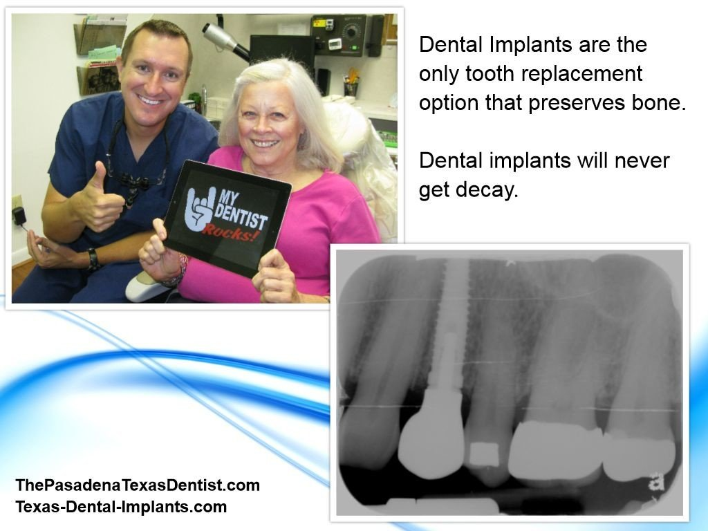 Implant Dentist Pasadena Texas