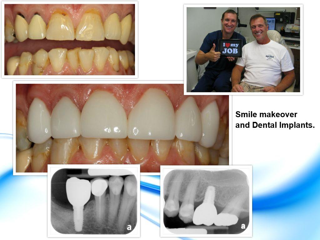 Cosmetic Dentistry Pasadena TX