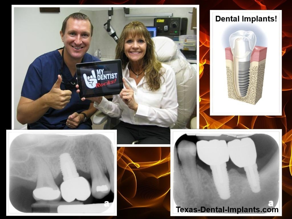 Dental Implants in Pasadena and Deer Park Texas