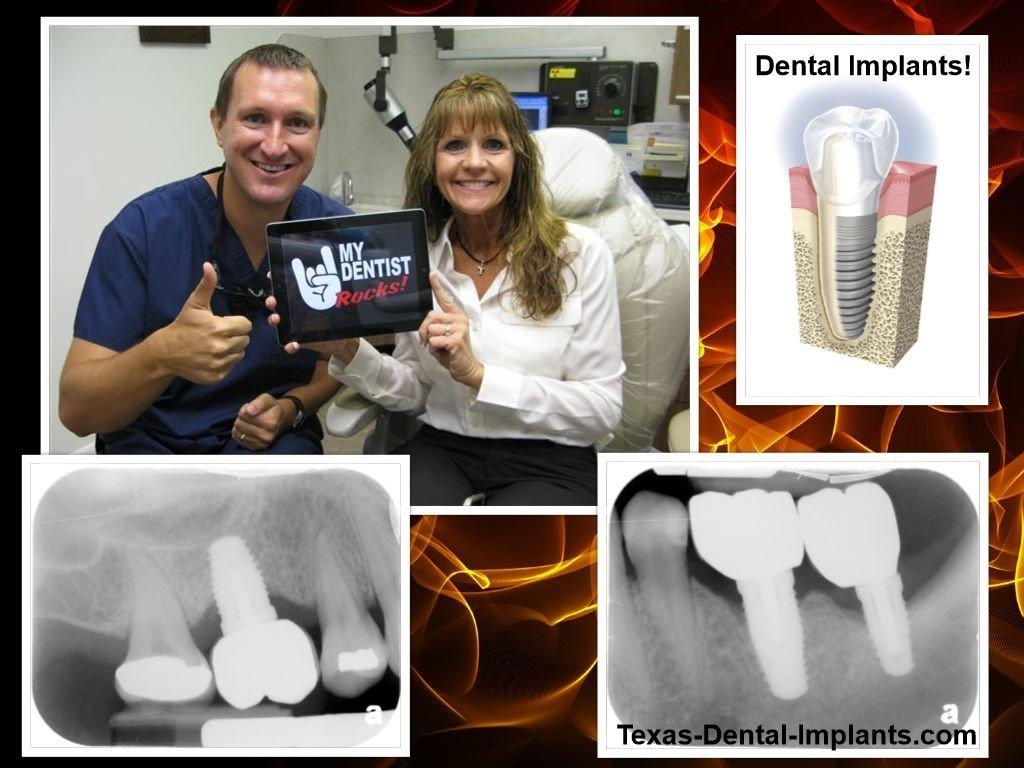 Dental Implants in Pasadena and Deer Park Texas