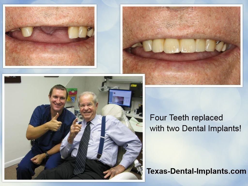Pasadena TX Dental Implant Bridge