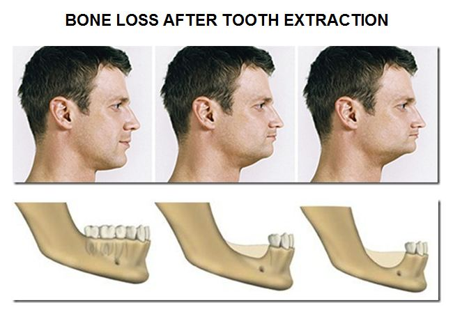 Bone Loss After Teeth Lost