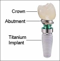 Dental Implant Dentist Pasdena Texas