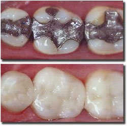 silver or white colored tooth fillings