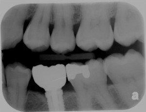 xray2-implant-300x231