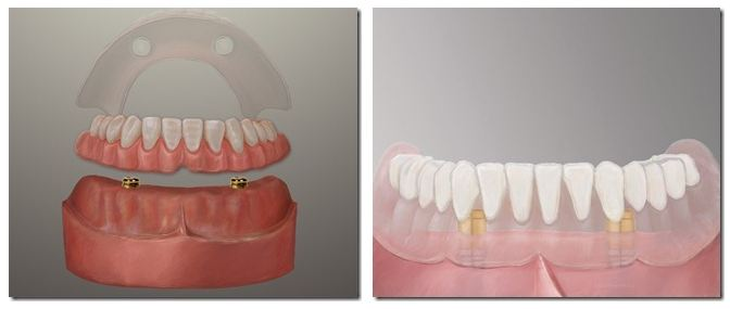 Dental-Implant-Dentures