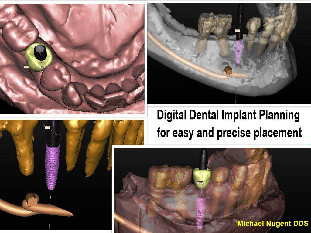 Dental Implants with Dr. Nugent