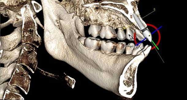 dental-implants-conebeam