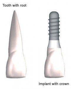 Dental Implant Pasadena Texas