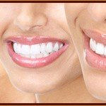 Teeth Bleaching, Teeth Whitening Pasadena Texas
