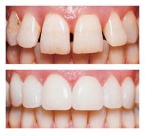 porcelain veneers in Pasadena Texas