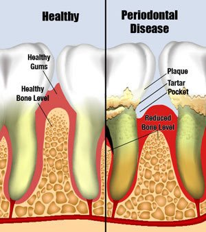 Periodontal Disease Pasadena Texas