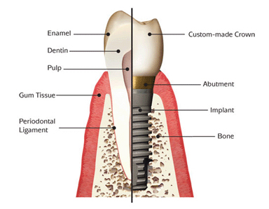 Dental Implants Pasdena Texas