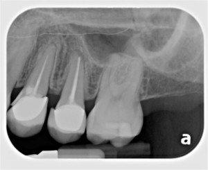 Dentist for Pasadena, Texas