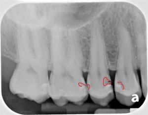 Dental Tooth Colored Fillings