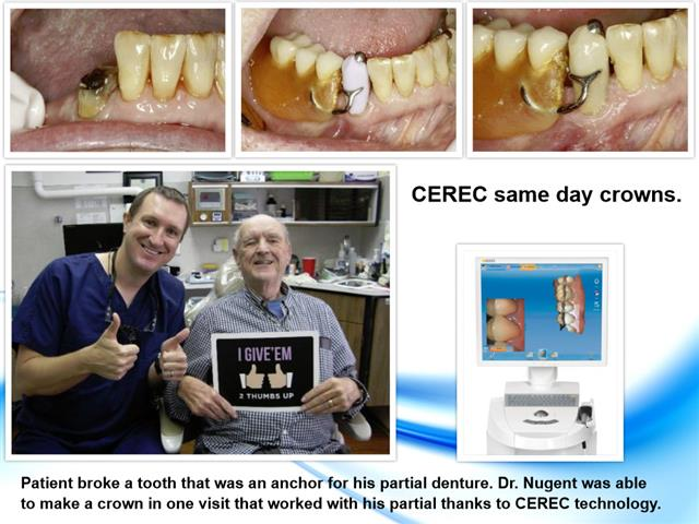 CEREC Dental Crown Pasadena Texas
