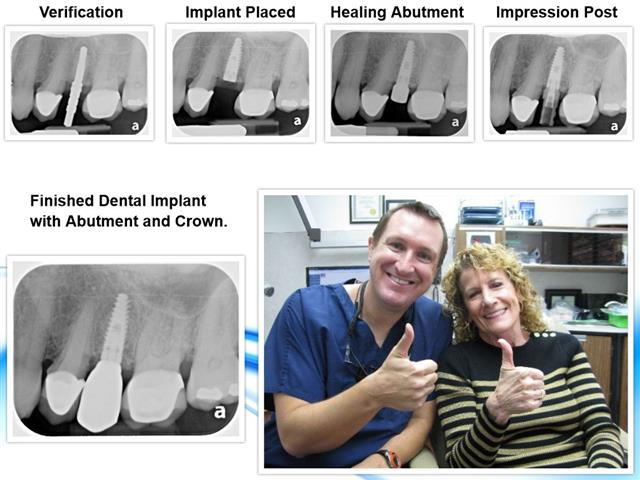 Dental Implant Dentist Dr. Nugent