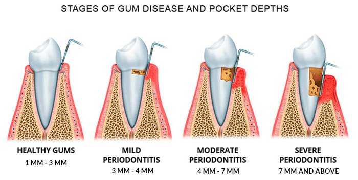 Periodontal Disease is the leading cause of tooth loss.