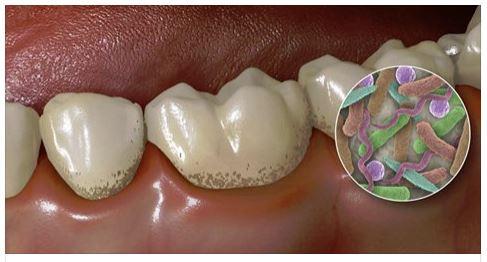 Gum Disease Pasdaena Texas