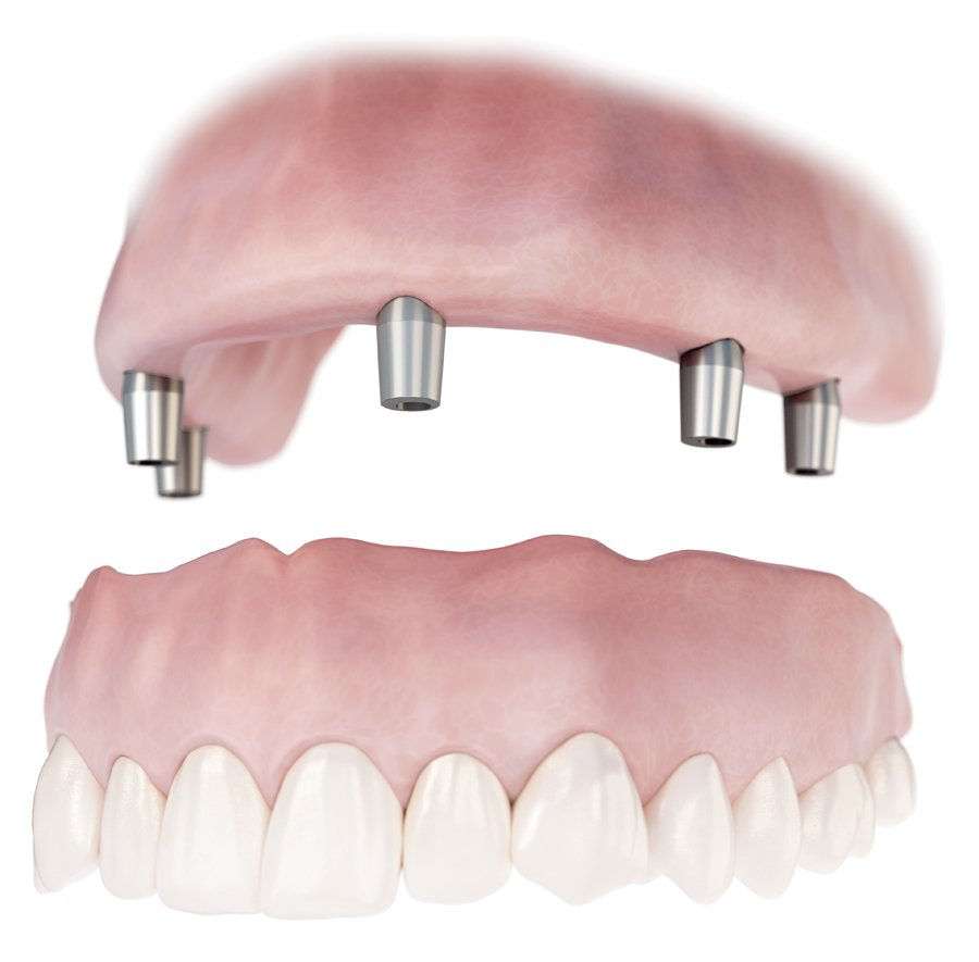 Conus Denture Dentist Pasadena Texas