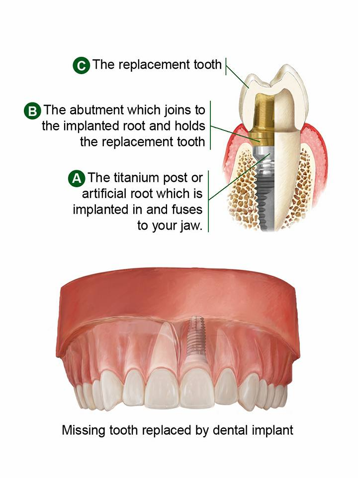 Dental Implant Parts