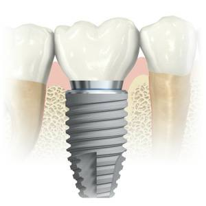 Michael Nugent DDS Dental Implants