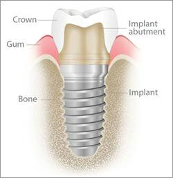 Parts to a Dental Implant