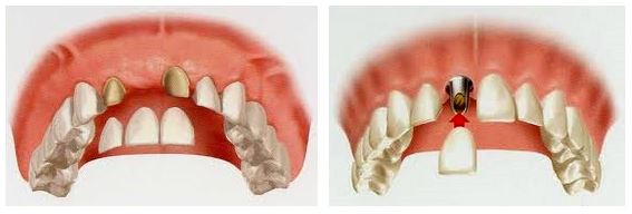 Dental Implant of Bridge