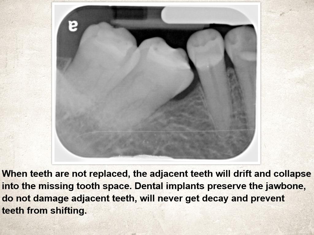 Dental Implants Prevent Shifting Teeth