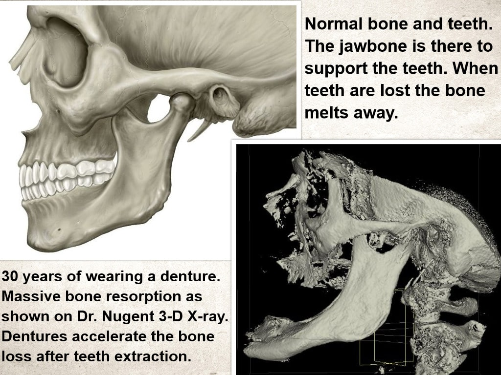 Bone Loss with Dentures
