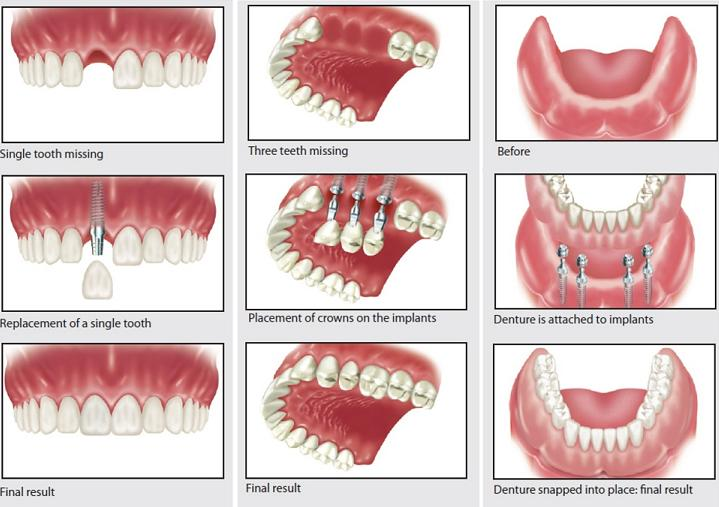 Dental Implant Dentistry Options