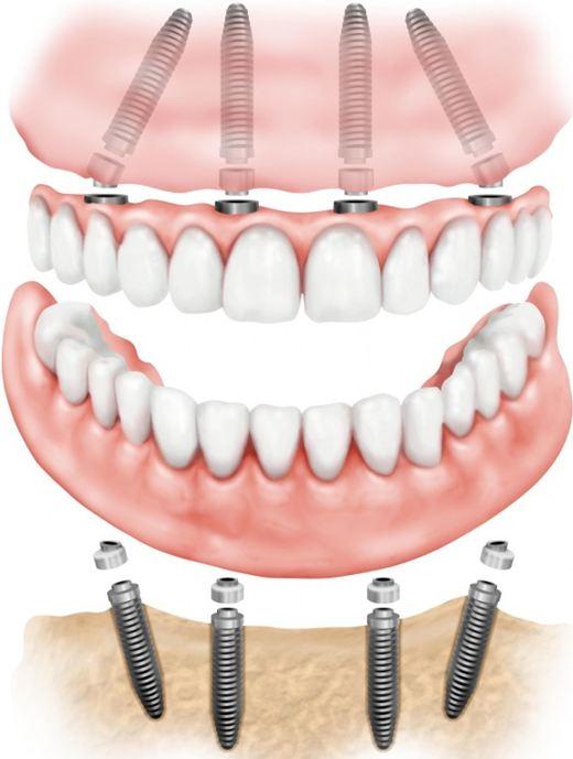 All on 4 Dental Implants Pasadena Texas